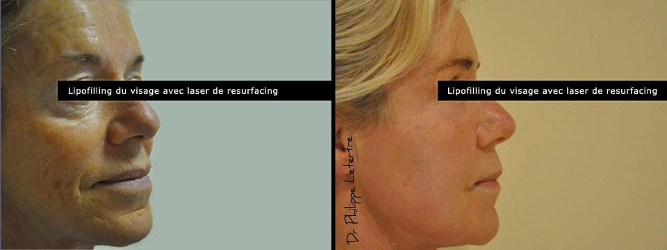 La méthode de laugmentation du membre sans opération