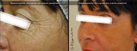 Blépharoplastie chirurgicales des 4 paupières avant-après