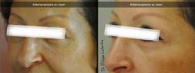 Blépharoplastie au laser avant-après