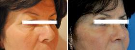 Blépharoplastie classique avant-après