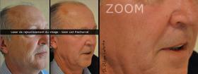 Laser co2 fractionné, rajeunissement du visage