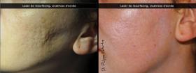 Laser de resurfacing, cicatrices d'acnés
