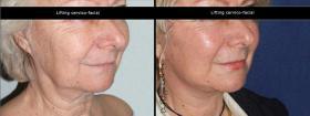 Lifting cervico-facial avant-après
