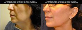 Liposuccion du cou et lipofilling du visage
