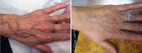 Radiesse, rajeunissement des mains avant-après