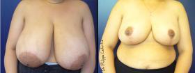 Reducción mamaria antes-despues
