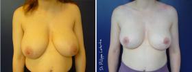 Réduction mammaire avant-après