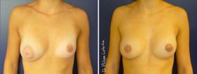 Correction des seins tubéreux avant-après