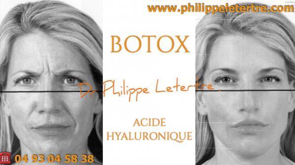 botox acide hyaluronique quelle différence