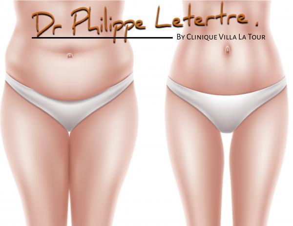 Chirurgie-du-ventre-plastie-abdominale-chirurgien-nice-cimiez