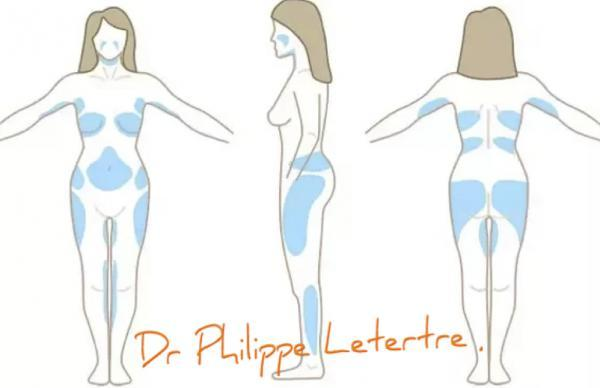 la liposuccion la chirurgie de la graisse