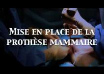 augmentation mammaire voie axillaire Dr letertre Nice Cannes French Rivièra Monaco Côte d'Azur