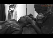 Intervention de greffe de cheveux  par la technique FUE