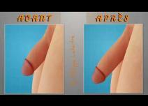 Les résultats d'une pénoplastie